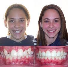 Before And After Orthodontic Results Richard D Alston