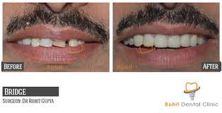 Solution Of Overbite Problem In India