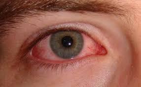 Viral Conjunctivitis (Pink Eye): Practice Essentials, Background ...