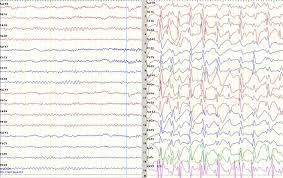 9 types of eeg tests everything about