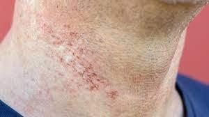 laser hair removal burns prevention