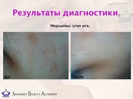 Дипломная работа Димитриевич косметика egia Результаты диагностики Морщины угол рта