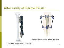 external fixator external fixator 53 728 jpg cb 1298383915