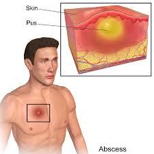 skin abscess pain relief