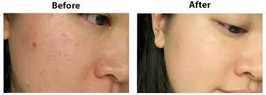 Kết quả hình ảnh cho Kem trị mụn-se lỗ chân lông Skin Refining Treatment