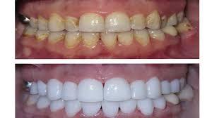 ment blanchir les dents en 1 semaine
