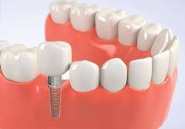 traditional dental implant