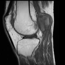 Popliteal artery aneurysm | Radiology Case | Radiopaedia.org