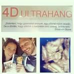 vizes folyás terhesség
