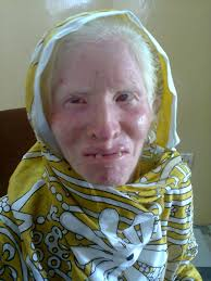 50 year old Shahnaz Akhtar and her three sisters suffer from Vitiligo and reduced vision by birth. At 22 she got married to her cousin, but her marriage ... - Shehnaz-Akhtar-1