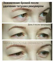 удаление татуажа тату ремувером Viktoria Beauty Club