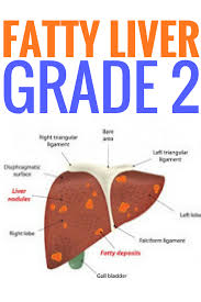 Diet Chart For Fatty Liver Grade 3 Fatty Liver Grade 2 Fatty Liver Diet Fatty Liver Cleanse