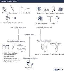 sterilisation frau schweiz kosten