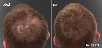 Pánské účesy Pro řídké Vlasy 4 Střihy Které Ti Dodají Sebevědomí