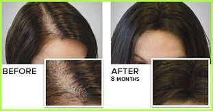how can i grow my hair faster 5