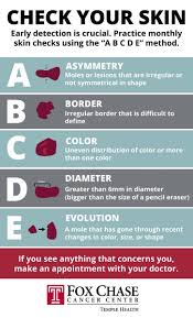 Mole Chart For Skin Cancer Step Into Summer With These Sun Protection Tips Fox Chase