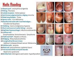 Nails Reading Chart Nail Disorders Health Talk Health
