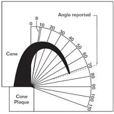 Orton Test Cone Set