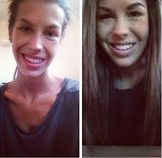 anorexic face before after. Simple Face 15 Inspiring Before And After Pictures Of People Who Won The Battle Against  Their Eating Disorders In Anorexic Face S