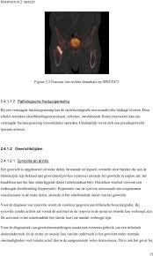 Femurkop free download, or read Femurkop online