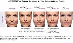 Lip Filler Chart Juvederm Chart Med Utah Facial Plastics