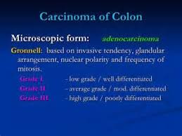 essay of mitosis and cancer grade  essay of mitosis and cancer grade 10