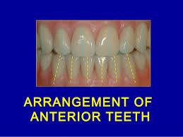 Teeth Setting 9 Anterior Teeth Arrangement