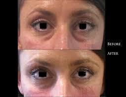 Under-Eye Filler - Puffy Eyes, Dark Circles & More   Perfect Eyes Ltd