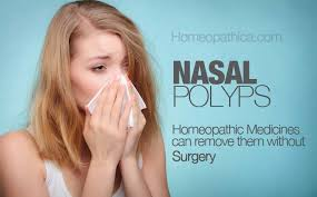 Nasal Polyps - 6 Best Homeopathic medicines for removing them ...
