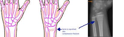 compression force injury. \ compression force injury