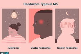 Ms Light Headed Headaches In Ms Types Symptoms Causes Diagnosis Treatments