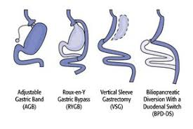Bariatric Surgery & Weight-Loss Surgery Options