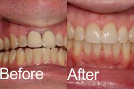 Dental Crowns \u0026 Bridges in Easton, PA | Dr. Piorkowski