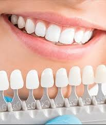 Cosmetic Dentistry Round Rock Teeth Whitening Porcelain