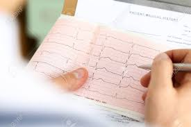 Male Medicine Doctor Hands Holding Cardiogram Chart On Clipboard