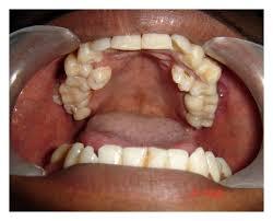 Supernumerary Tooth Gbpusdchart Com