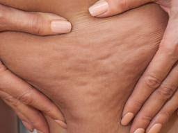 Peau d'orange: Causes and treatment
