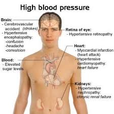 Hypertension Headache Location Chart Blood Pressure Causes Symptoms And Types Blood Pressure