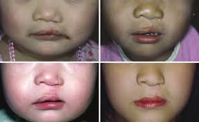 cleft lip repair fig 2 examples of repaired unilateral cleft lip cleft palate in