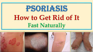 best natural home remes and cures for scalp and skin psoriasis treatment