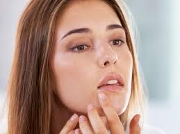 cold sore vs pimple differences