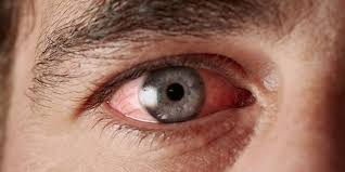 Quick Home Remedies for Pink Eye - American Academy of Ophthalmology