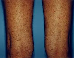 other factors that affect the number of laser hair removal treatments include the location on the body hair color hair caliber and skin color