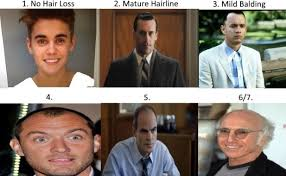Norwood Scale Assess Your Hair Loss With Pics Celebrity