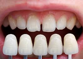 Imagini pentru Faţetele dentare