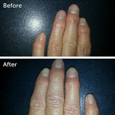 Image result for arthritis before and after