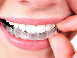 Read all the Latest Orthodontic Tips and News in our blog