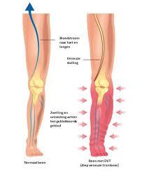 wat is een zweepslag in je been