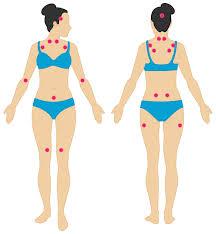 Fibromyalgia Chart Pictures Of Fibromyalgia Symptoms