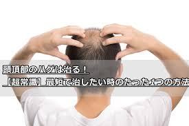 頭頂部のハゲは治る超常識最短で治したい時のたった1つの方法